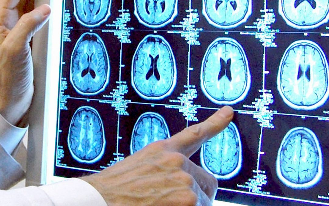 Clinical Trials Aimed at Preventing Alzheimer's to Begin at Butler Hospital's Memory and Aging Program